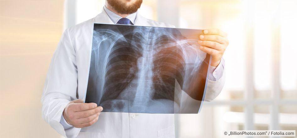 Weiße flecken auf der lunge